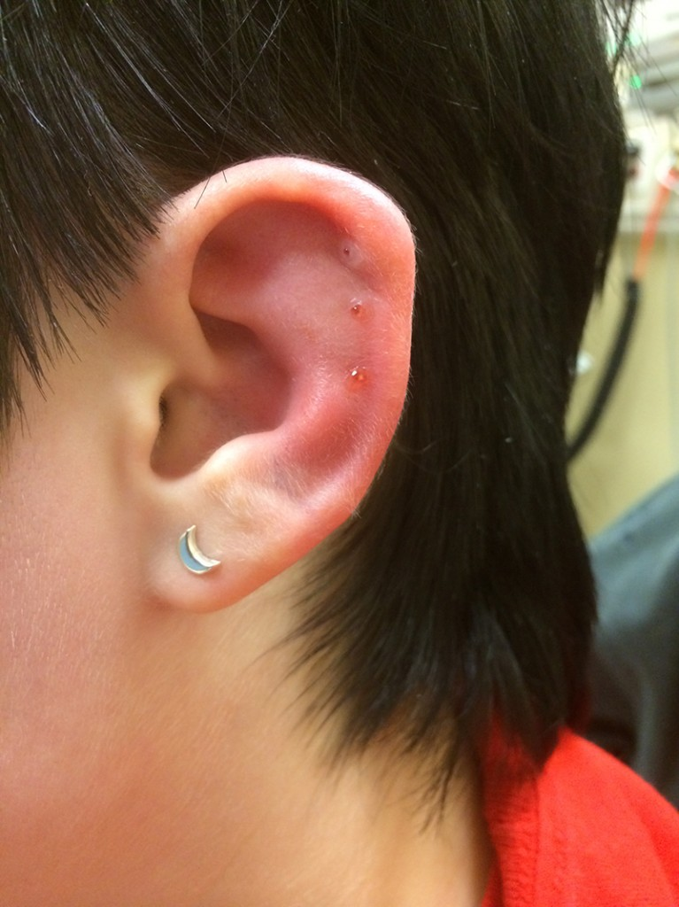 You Re Piercing What Medical Complications Of Cartilage And Ear